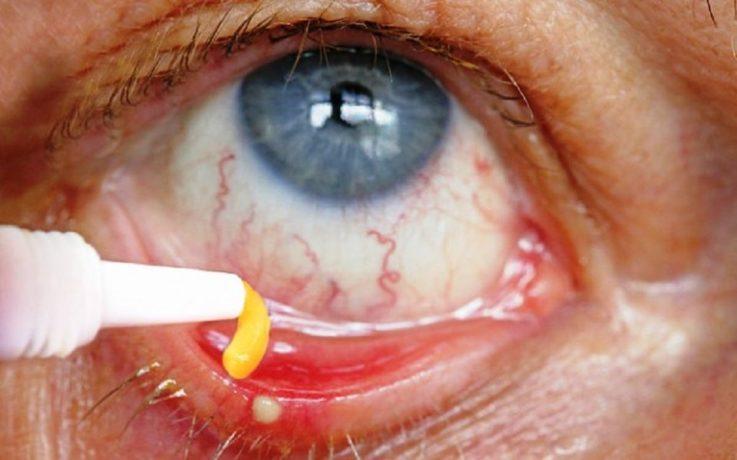 Лечение дирофиляриоза