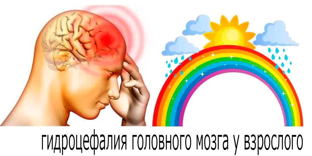 Водянка головы причины