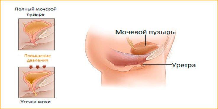 Симптомы гипореактивной формы