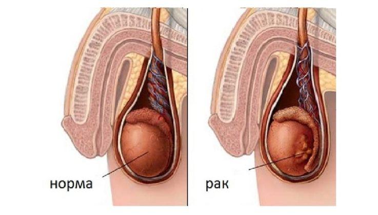 Злокачественные опухоли яичек