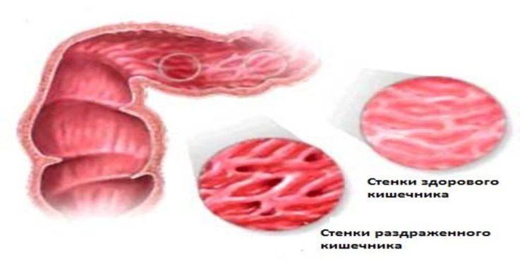 Самые распространенные заболевания ободочной кишки