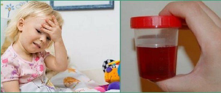 Гематурический хронический гломерулонефрит