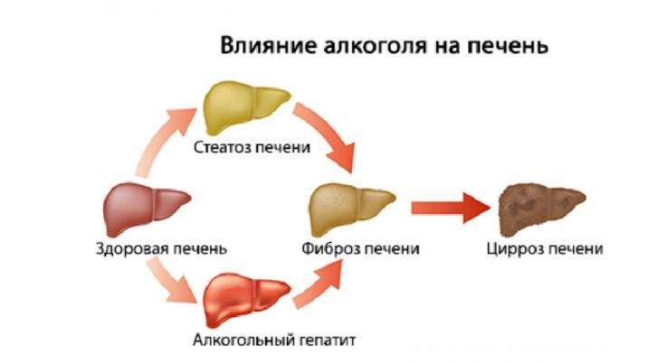 Изменения печени