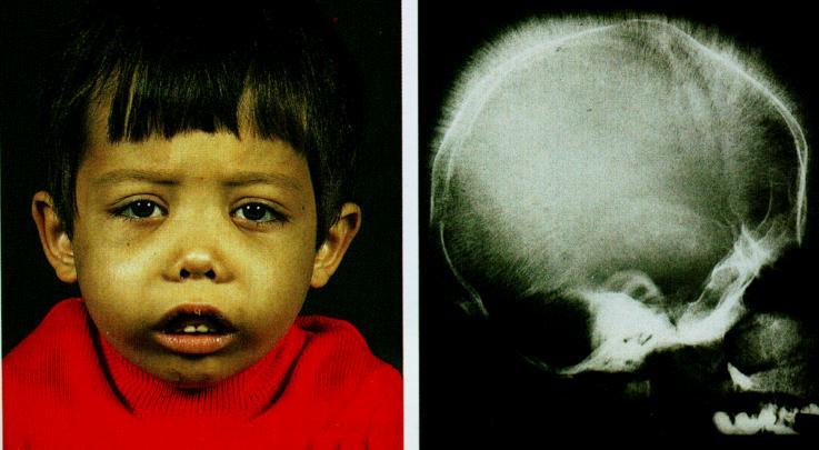 Общие клинические признаки талассемии