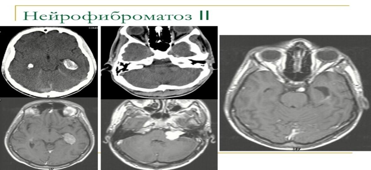 Причины развития невриномы