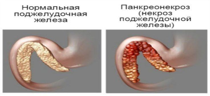 Клссификация