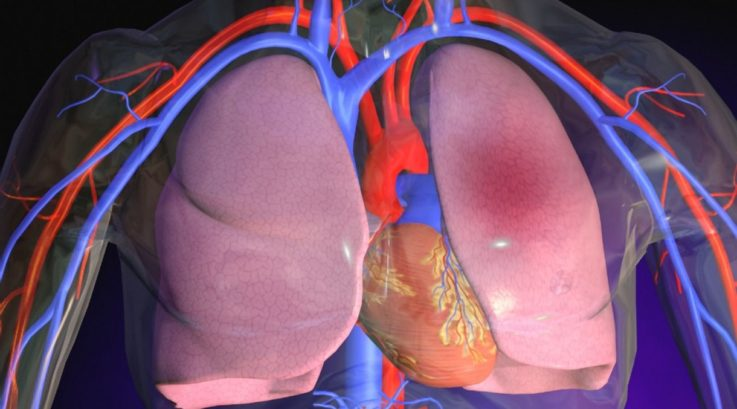 Поражение органов при ДВС