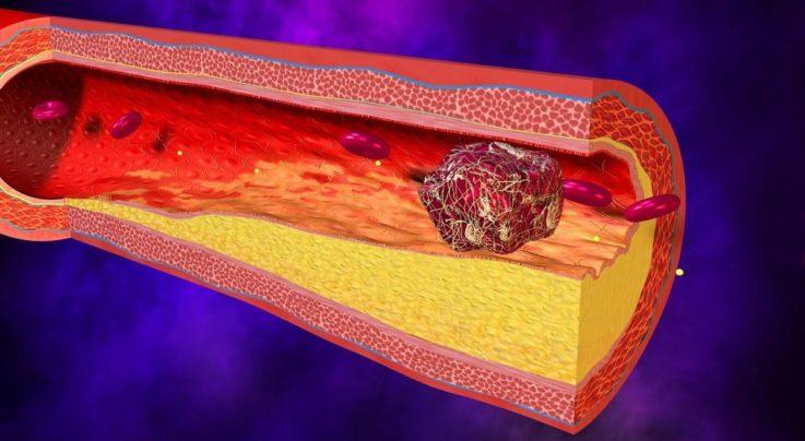 Виды тромбов