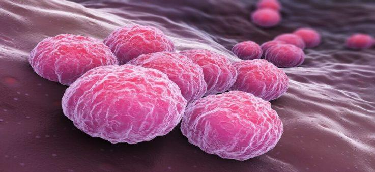 Самые частые возбудители атипичной пневмонии
