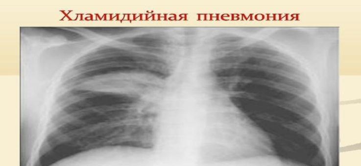 Атипичная пневмония хламидийной этиологии