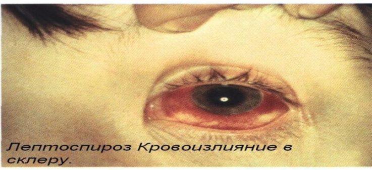 Основные признаки или симптомы лептоспироза