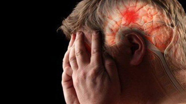 Отёк мозга