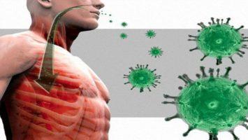 Атипичная пневмония