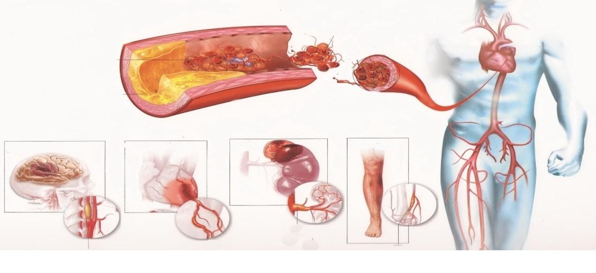 Что собой представляет атеросклеротический кардиосклероз и как его лечить
