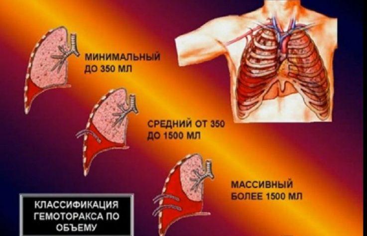 Классификация гемоторакса