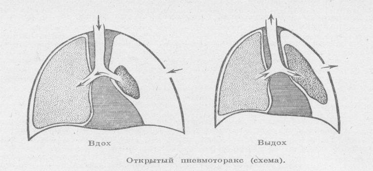 Виды пневмоторакса или классификация