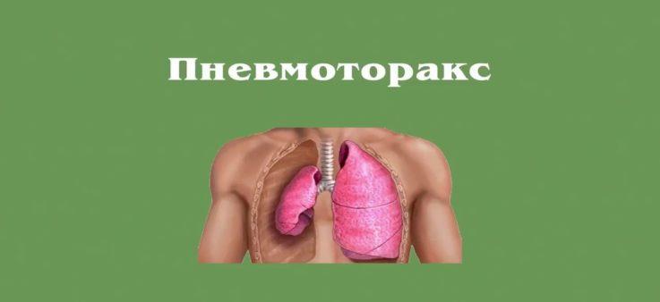 Механизм развития пневмоторакса