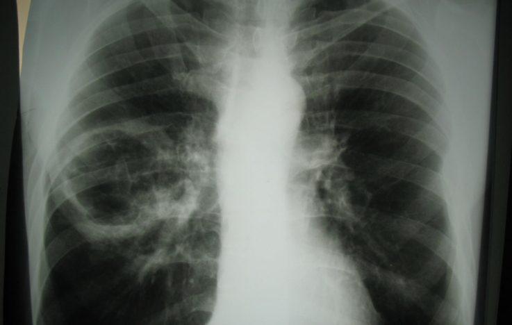 Диагностика абсцесса лёгкого