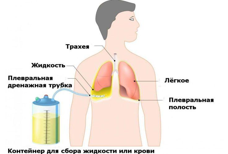 Лечение гемоторакса