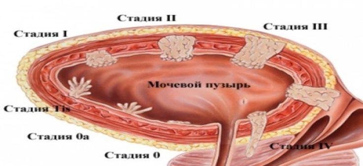 Классификация поражения мочевого пузыря