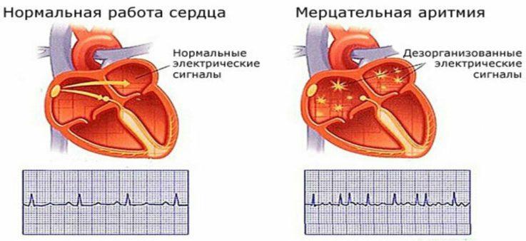 Осложнения кардиомиопатии и их профилактика