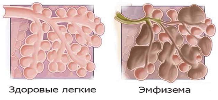Возможные осложнения пневмоний