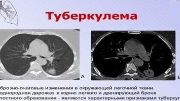 Туберкулема лёгких