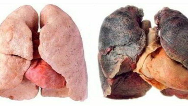 Силикоз лёгких
