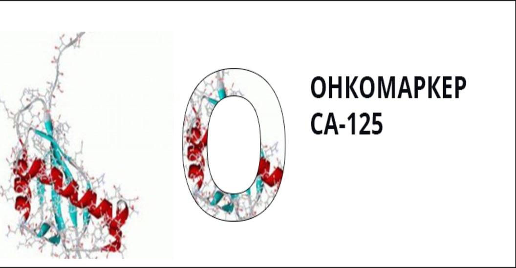 Онкомаркер СA-125: нормы и расшифровка