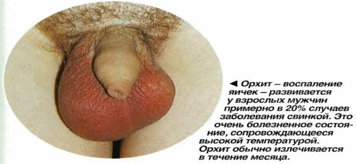 Классификация орхита