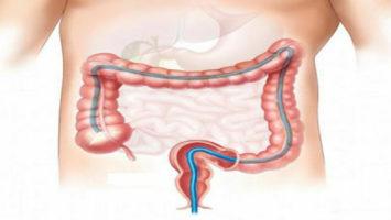 Раковый эмбриональный антиген