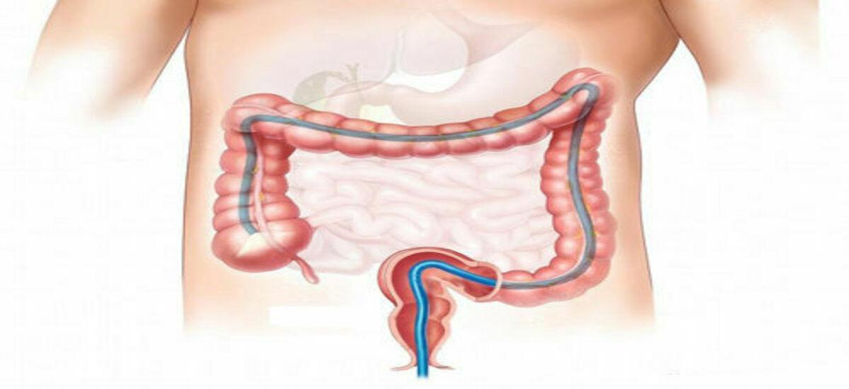 Онкомаркер РЭА (СЕА): раково эмбриональный антиген