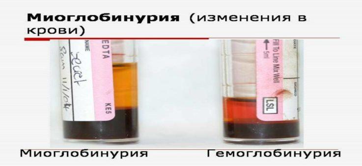 Техника определения миоглобина в крови и других биологических жидкостях