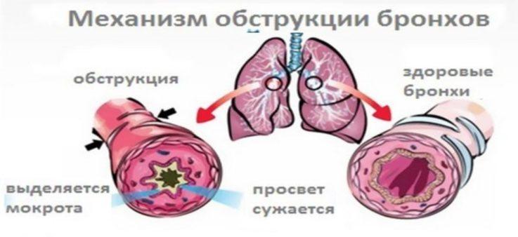 Почему возникает дыхательная недостаточность?
