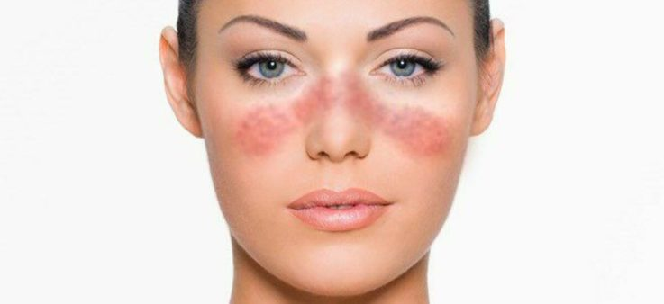 Проявления со стороны кожи и волосяного покрова