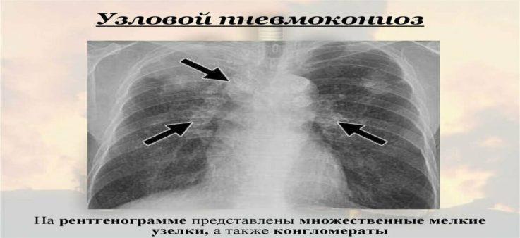 Механизм поражения лёгочной ткани