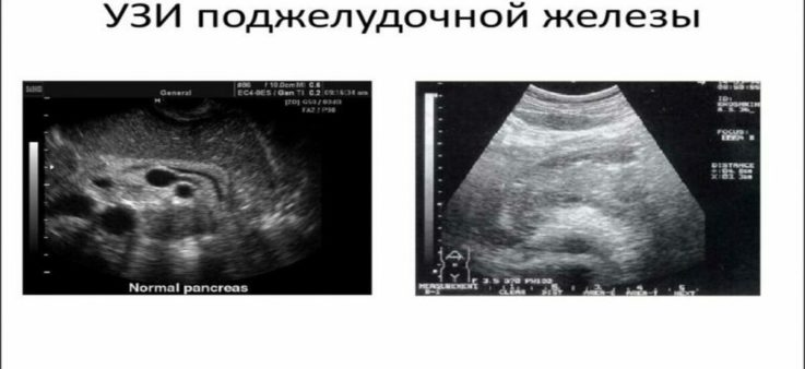 Особенности подготовки к УЗИ поджелудочной железы