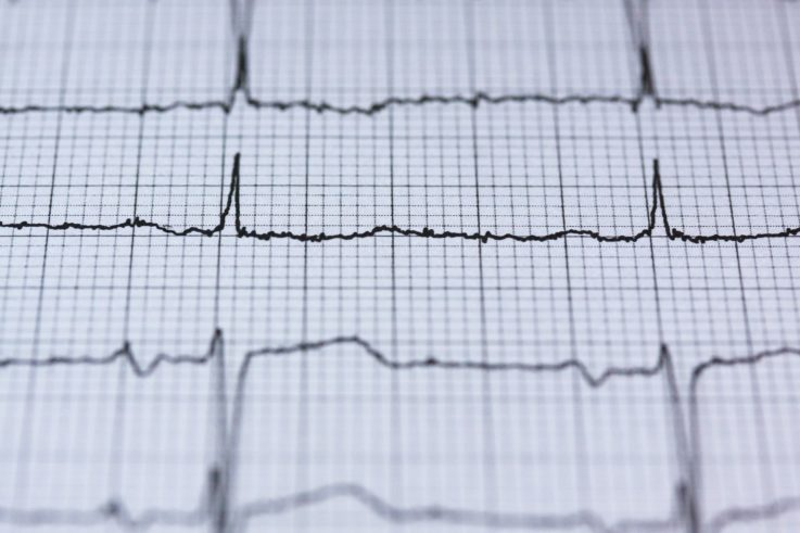 Подтверждение диагноза инфаркта миокарда
