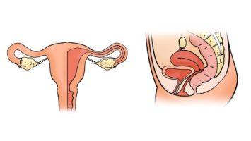 Полип эндометрия