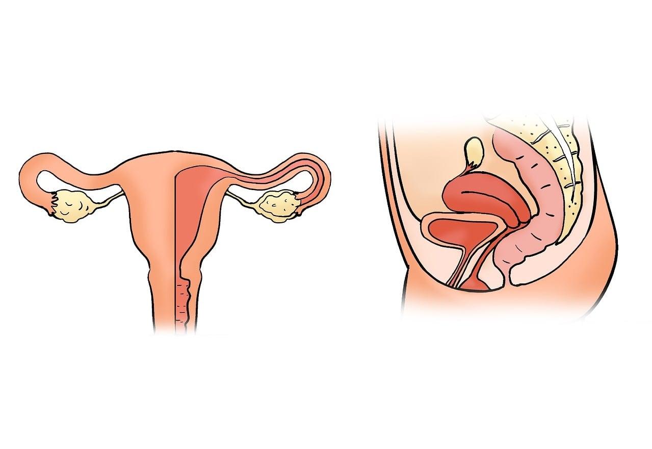 Полип эндометрия этиология
