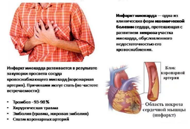 Симптомы, характерные для трансмурального инфаркта миокарда