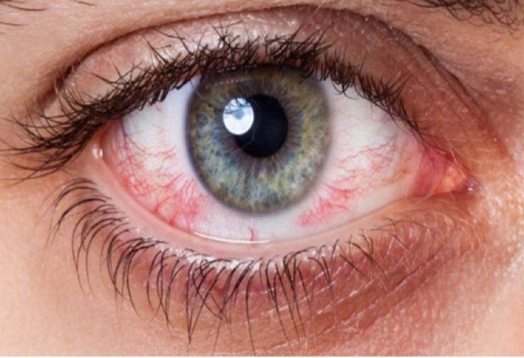 Что происходит с органом зрения