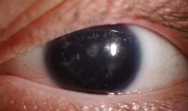 Как выглядит аниридия