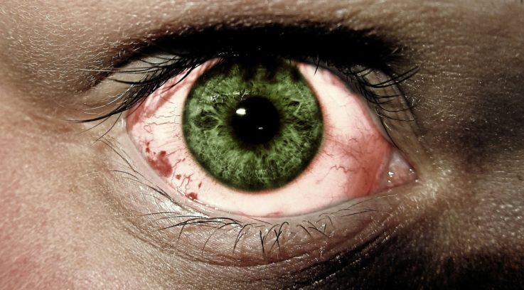 Как проявляется синдром сухого глаза
