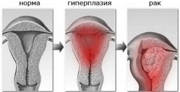 Что такое гиперплазия эндометрия