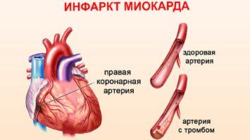 Обширный инфаркт