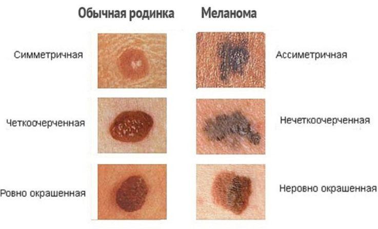 Узловая меланома